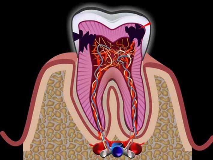 Воспаление нерва в зубе: основные симптомы и способы лечения — что делать и как убрать зубную боль?