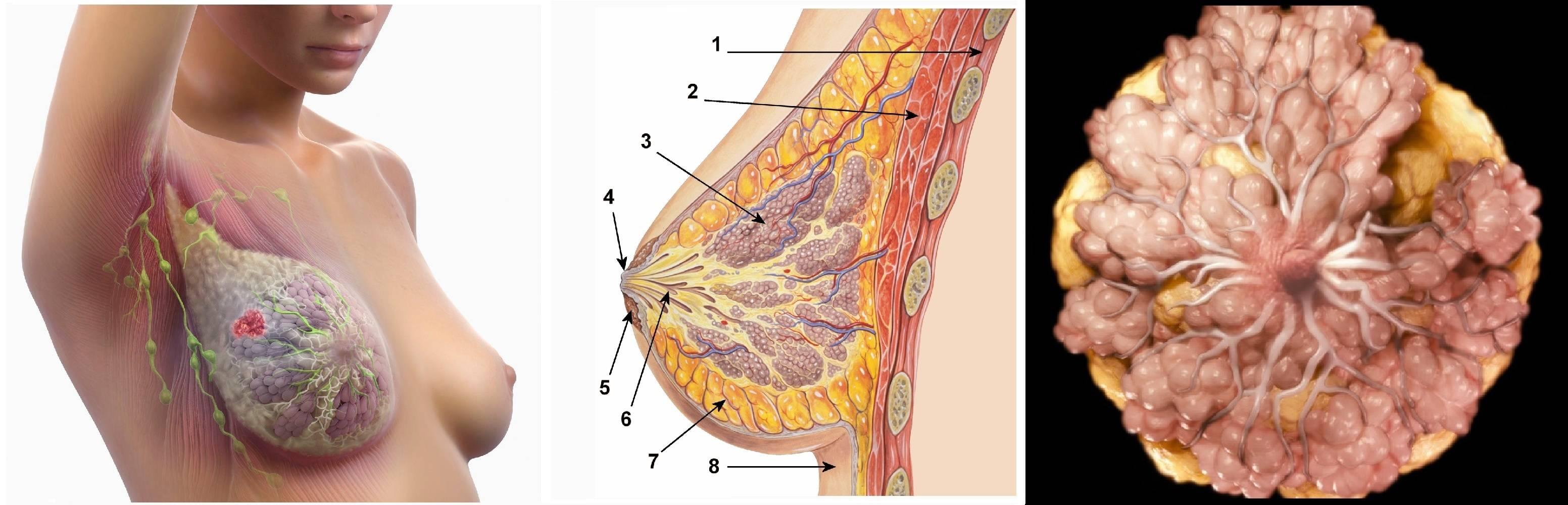 Кистозная мастопатия: причины и лечение