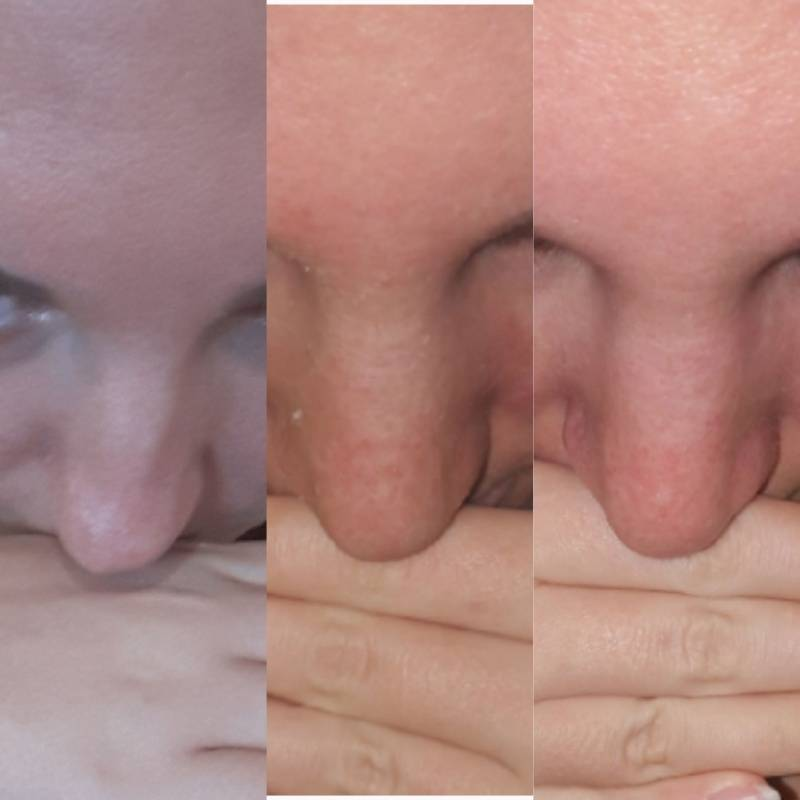 Что нельзя после ринопластики носа, а что можно? 11 советов +видео и фото