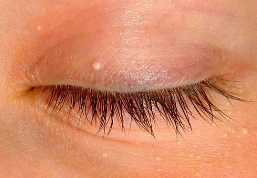Белые точки под глазами: особенности и опасность милиумов