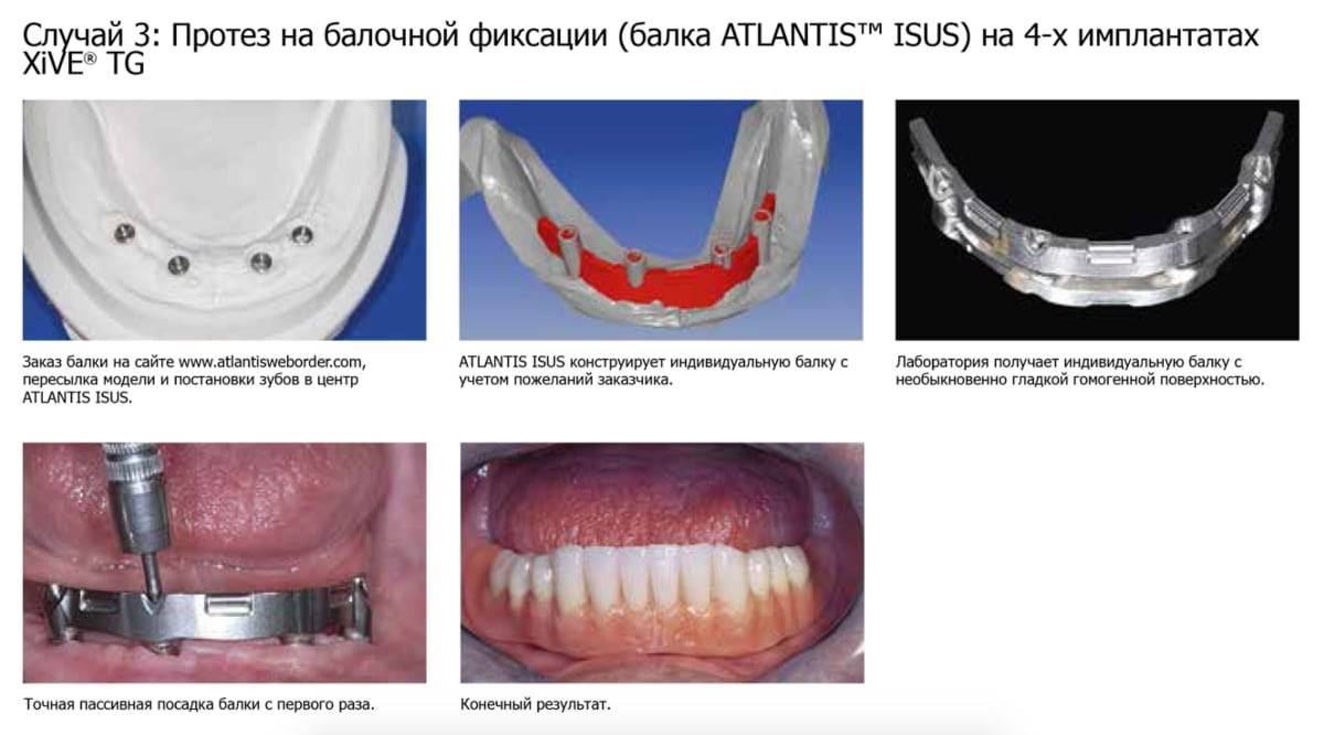 Срок службы зубных имплантов, гарантия и советы по уходу, обзор цен