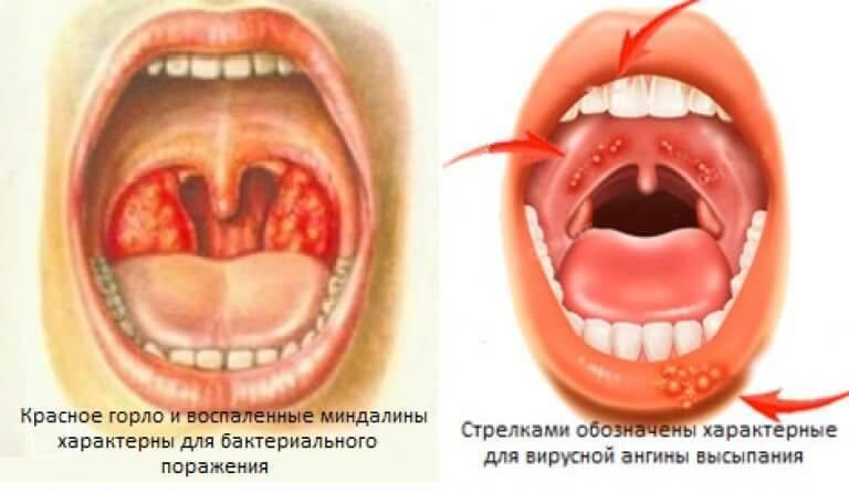 Ангина у детей: болезнь коварная, но лечится — в два счета!