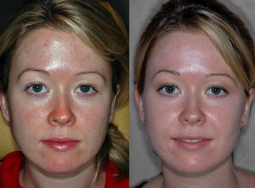 Лазерная чистка лица – отзывы с фото до и после проведения процедур
