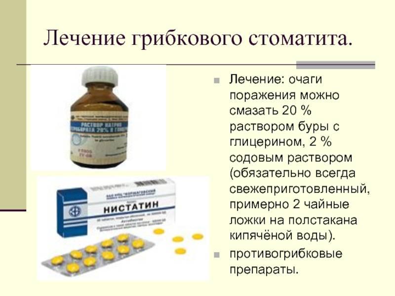 Лечение стоматита народными средствами у взрослых и детей. причины и симптомы стоматита