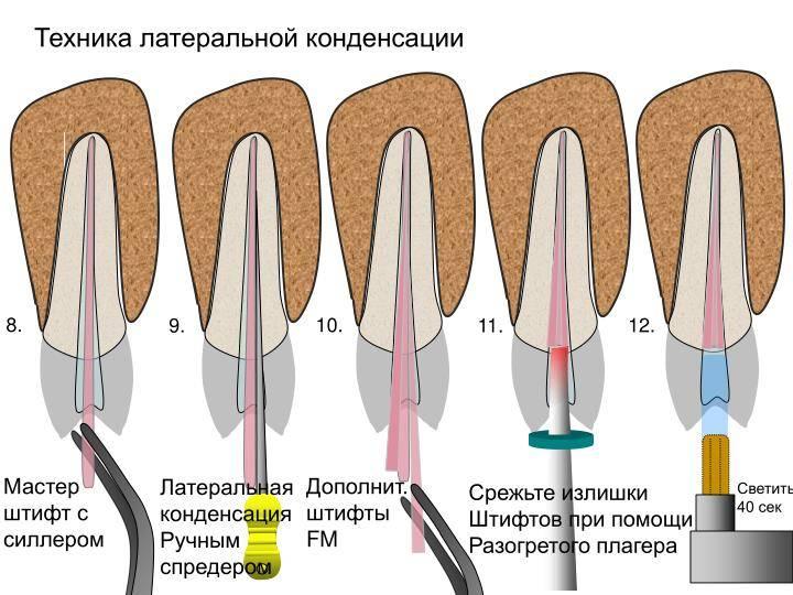 Лечение корневых каналов: пломбирование гуттаперчей