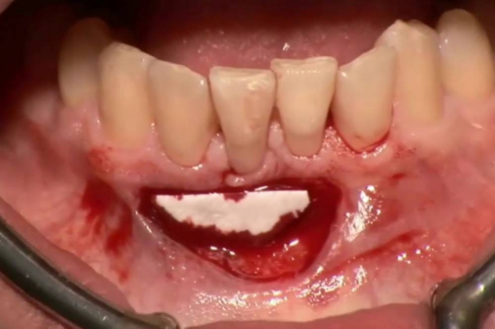 Что делать, если после удаления зуба десна воспалилась, опухла или побелела: лечение отека и гнойника