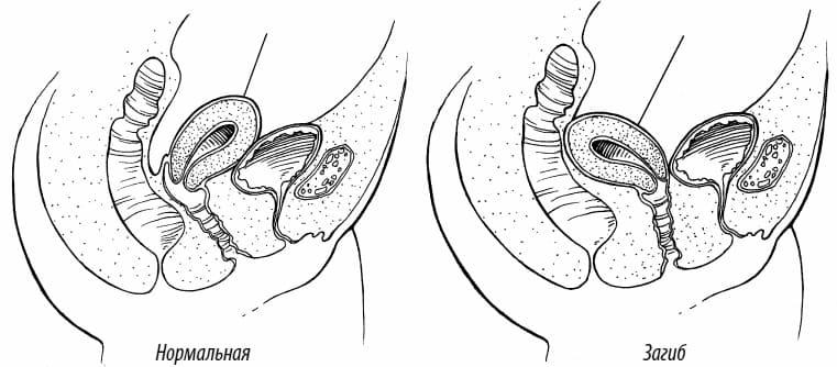 Загиб матки кзади и планирование беременности