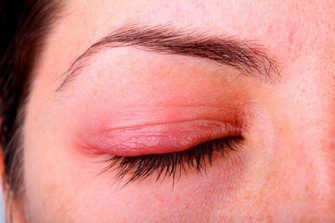 Чешуйчатый блефарит: симптомы и грамотное лечение