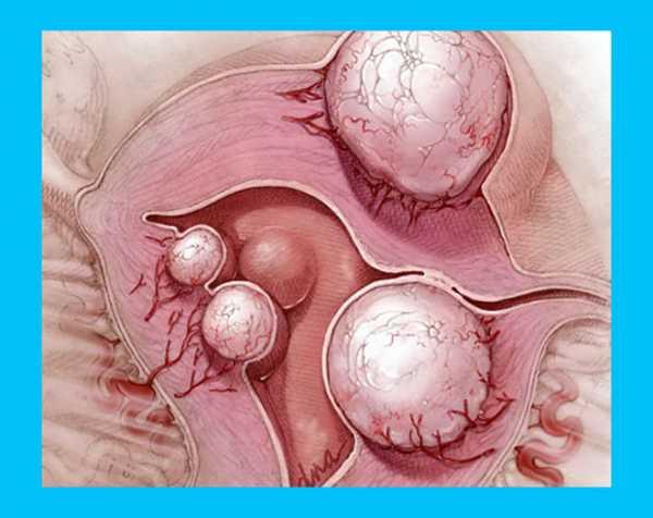 Все виды миомы матки, классификация по типу и росту узлов