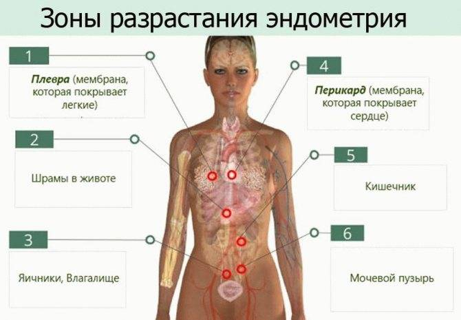 Особенности при лечении эндометриоза у женщин после 40 лет