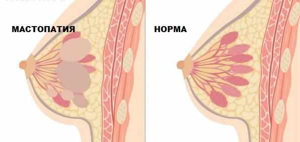 Фиброзная мастопатия: причины, признаки, лечение