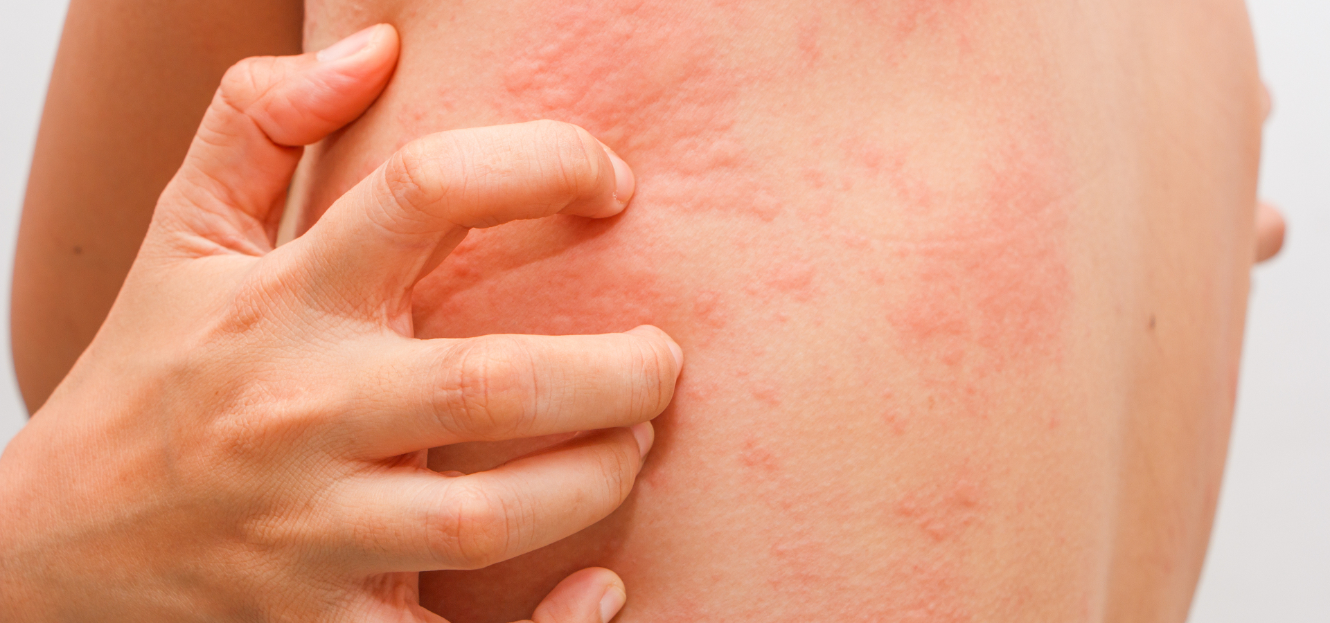 Аллергические реакции на фоне нервных стрессов