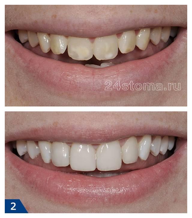 Можно ли на штифт нарастить зуб