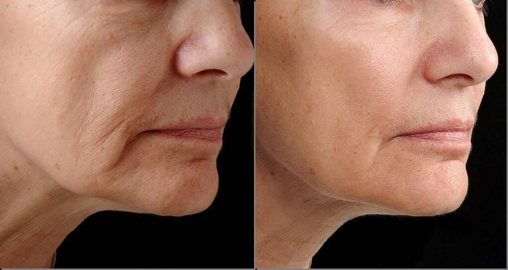 Отзывы о фракционном лазерном омоложении кожи лица и эффективности процедуры