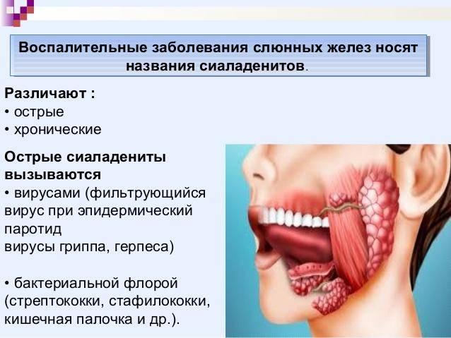 Сиалоаденит или воспаление слюнных желез – лечение, симптомы