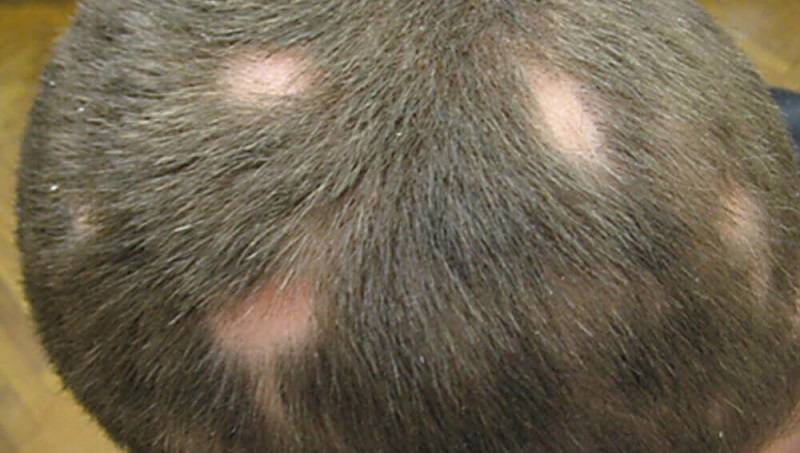 Гнездная алопеция: причины возникновения и особенности лечения