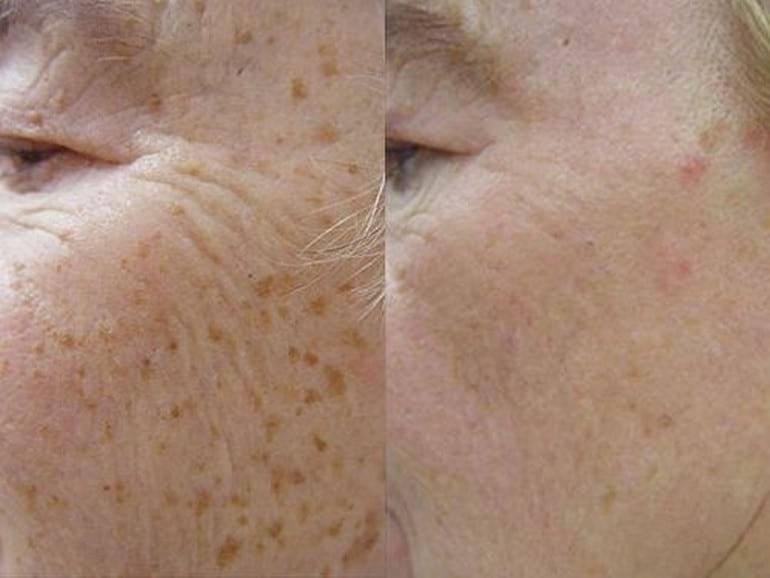 Возрастные пигментные пятна на лице как избавиться народными средствами, в косметическом салоне