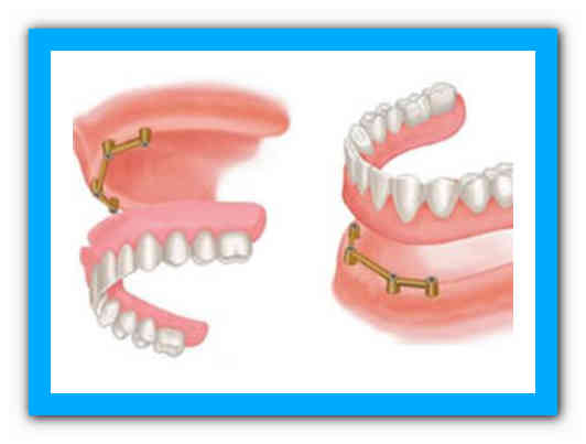 Виды зубных мостов, какие лучше, как ставят и сколько они стоят
