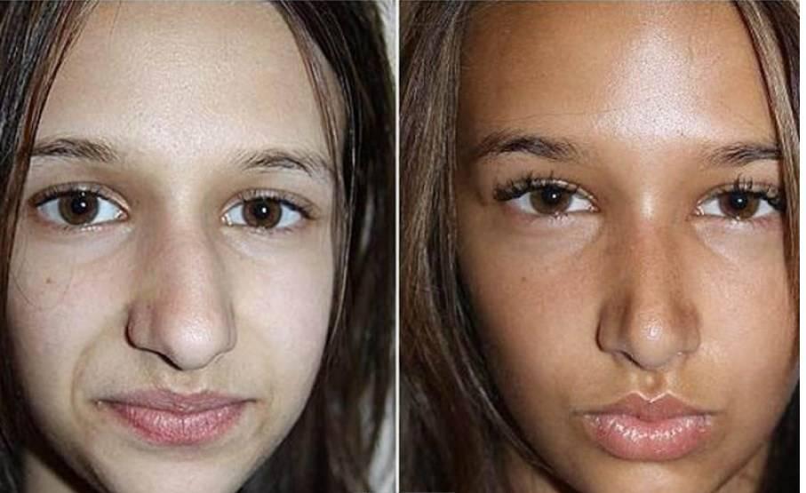 Как делают безоперационную ринопластику носа, ее виды и уход после