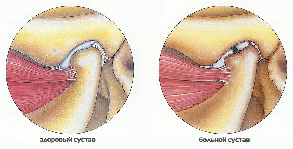 Артрит челюстного сустава что делать если воспаление челюстного сустава не проходит