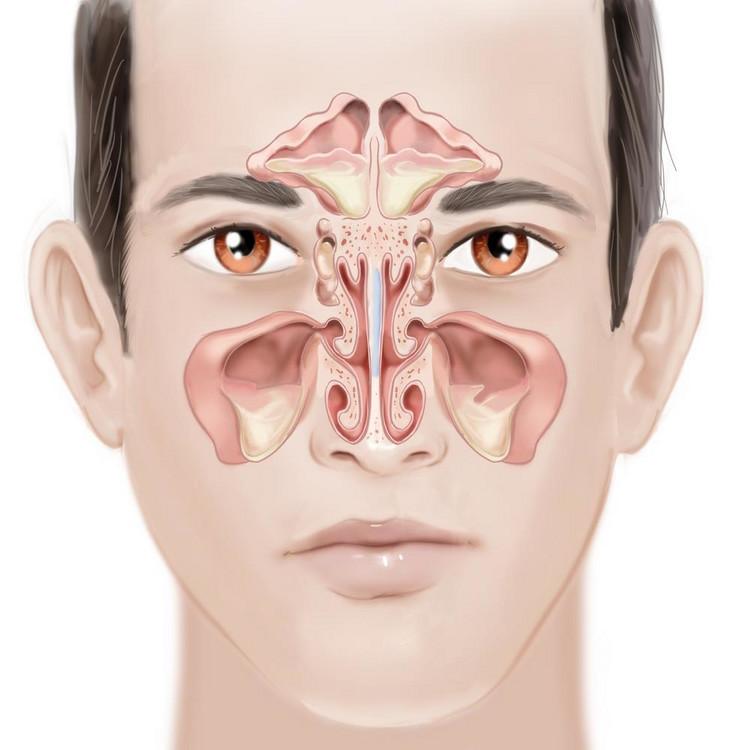 Киста верхнечелюстной пазухи: причины, симптомы, лечение и удаление