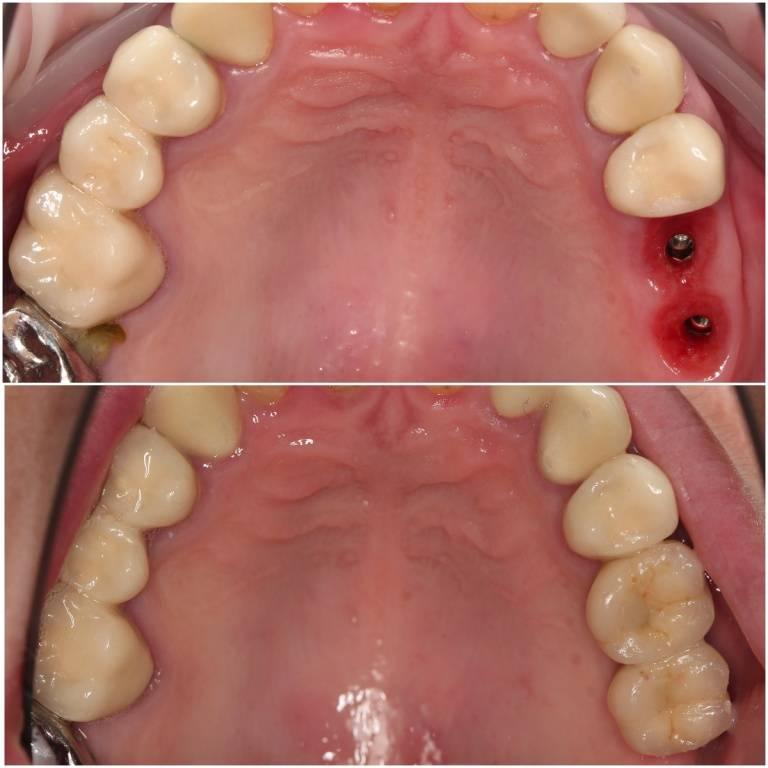 Мостовидный протез на имплантах: надежность фиксации и защита зубов