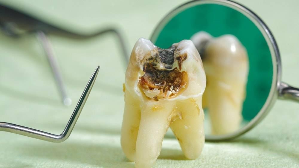 Гнилые зубы у детей