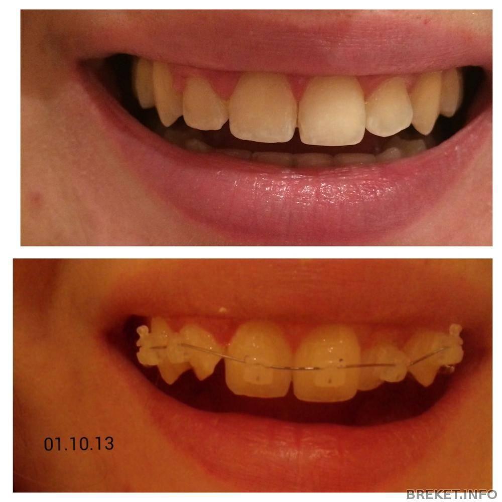 Подпиливание зубов: кому и зачем это нужно?