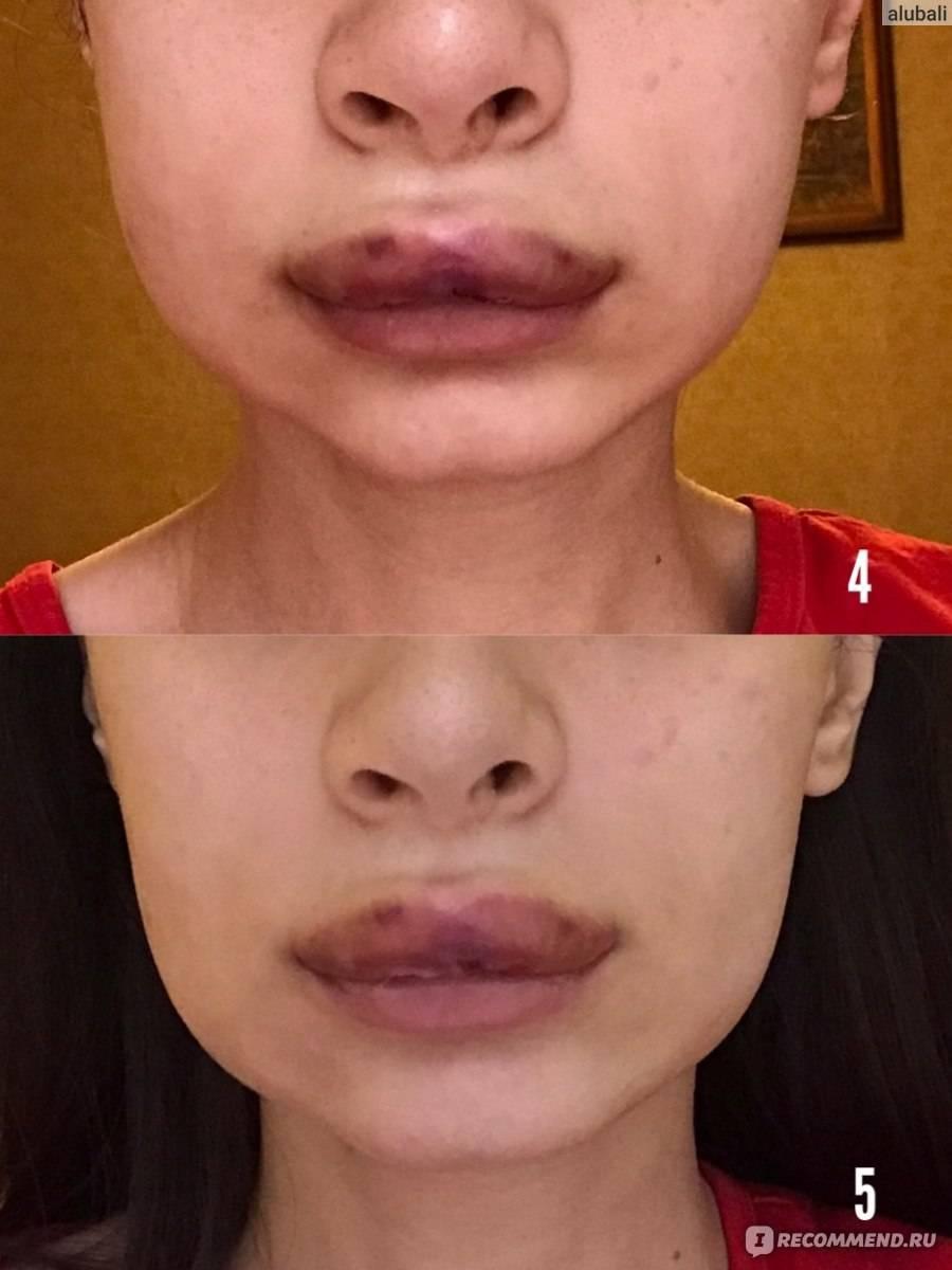 Чем лечить синяки после увеличения губ гиалуроновой кислотой?