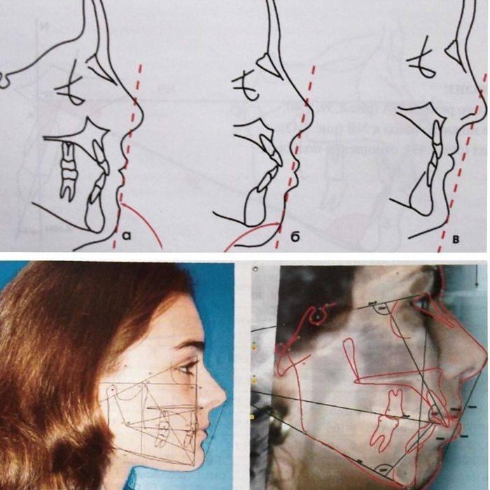 Вредно ли делать коррекцию овала лица филлерами? какие гели применяют в контурной пластике?
