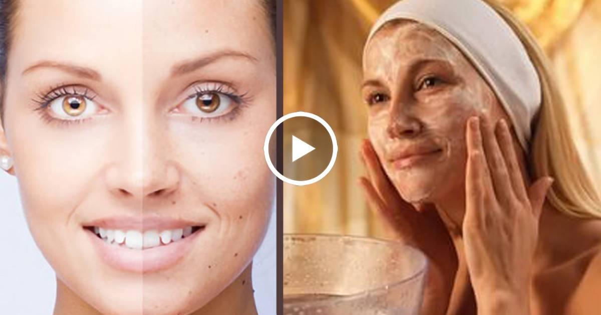 Как отбелить смуглую кожу и после загара?