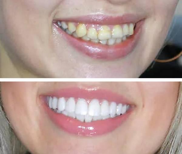 Как восстановить зуб, если остался один только корень, можно ли его нарастить?