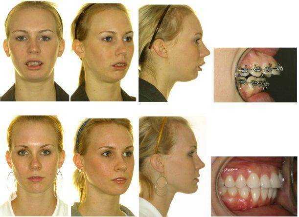 Съемные аппараты для перемещения зубов