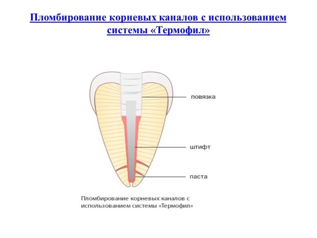 Что такое обтурация корневых каналов и как она проводится?