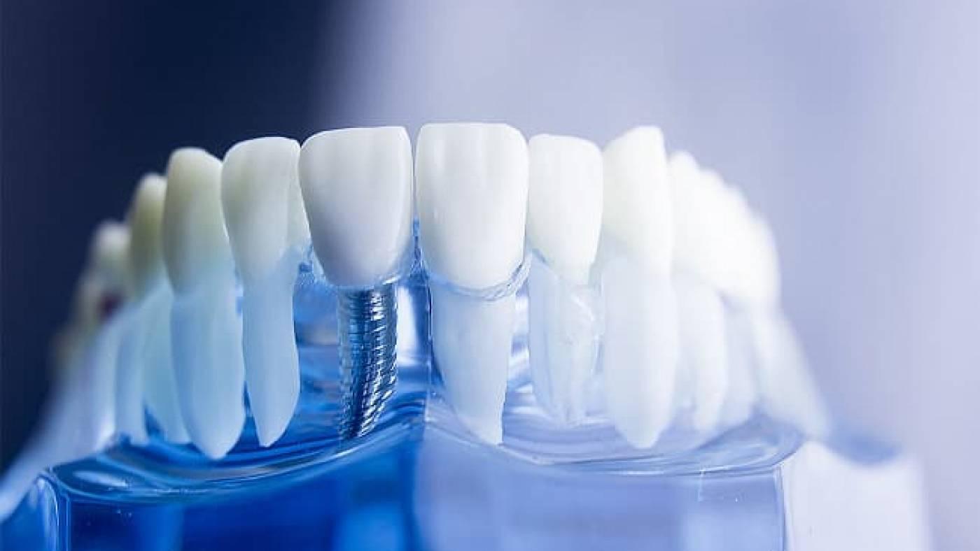 Привыкнуть к зубным протезам можно за 8 простых шагов: секреты стоматолога