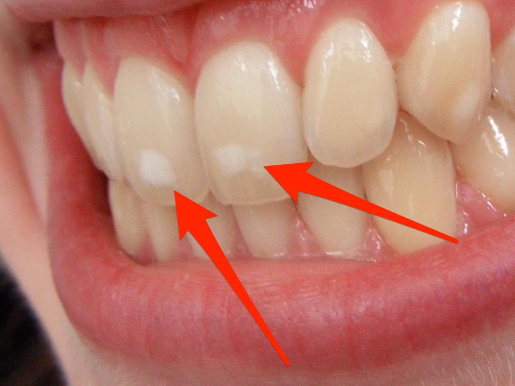 Почему во время беременности портятся зубы – крошатся, ломаются и выпадают, что с этим делать?