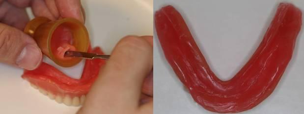 Съемные вставные протезы на присосках (на один зуб или полные): как они крепятся на челюсть?