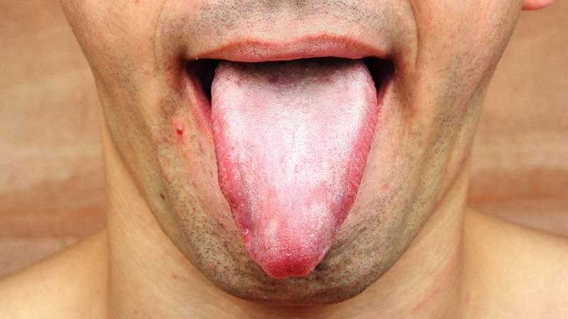 Темный язык - причины и лечение у детей и взрослых