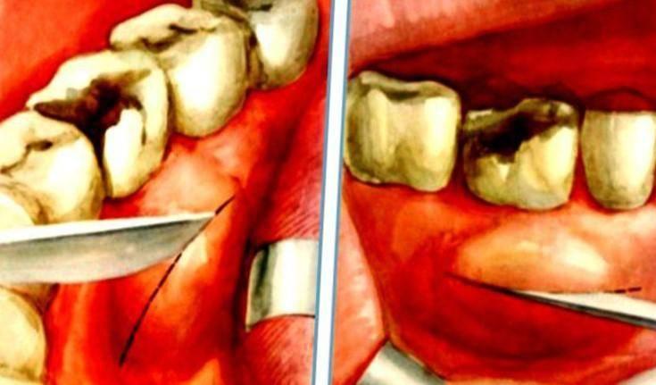 Что делать и к кому обращаться, если после удаления зуба из десны сбоку торчит кость?