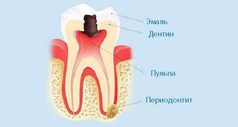 Зуб болит при постукивании и надавливании. болезненность после лечения кариеса. что делать, если болит зуб при надавливании
