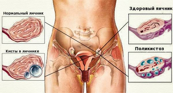 Жидкость в матке в пожилом возрасте — мой гинеколог