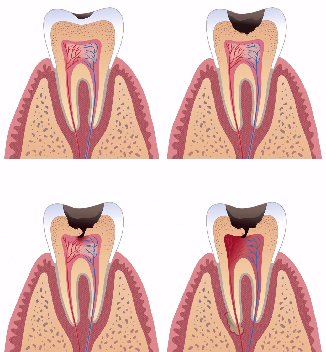 Всё о методах удаления кариеса с зубов