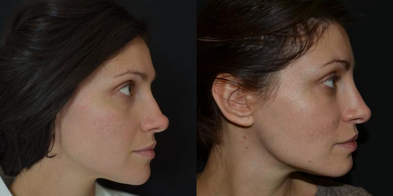 Природа и методы исправления асимметрии лица