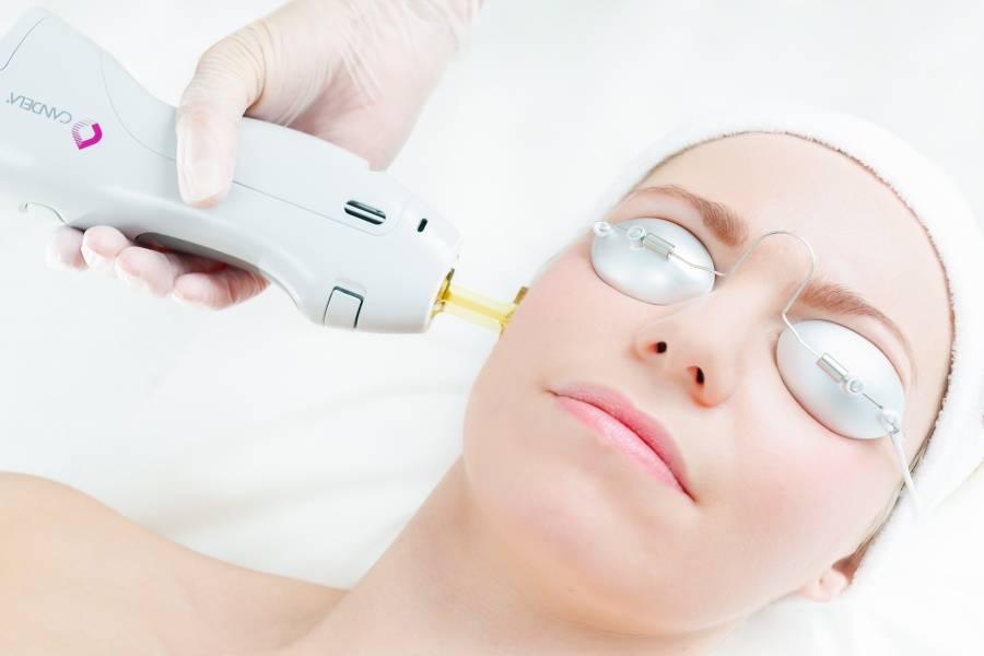Лазеры для косметологии candela   страница 6 из 11   лазерное оборудование для косметологии и эстетической медицины