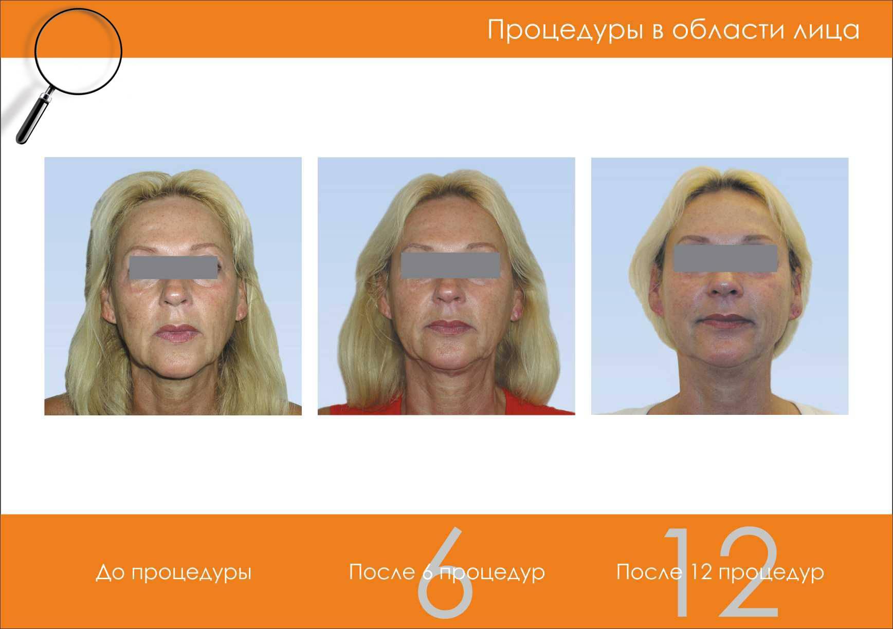 Бьютитек (beautytek) – безоперационная подтяжка лица и тела