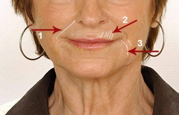 Как убрать брыли на лице?