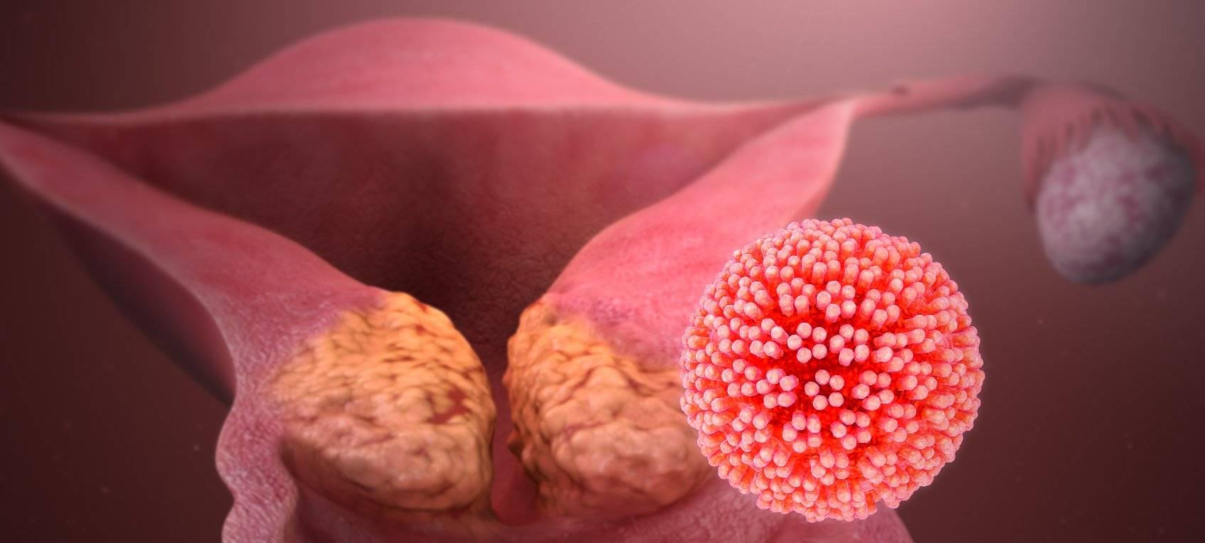 Саркома матки симптомы и лечение заболевания, сколько живут