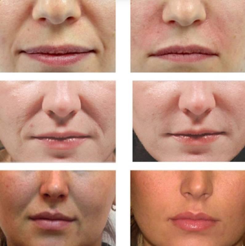 Колят ли ботокс в губы для увеличения и чтоб поднять уголки