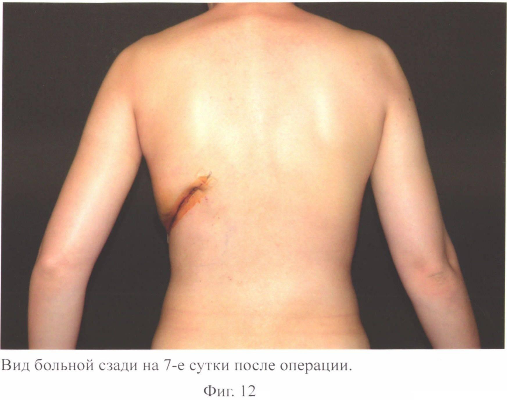 Как восстановить грудь после мастэктомии