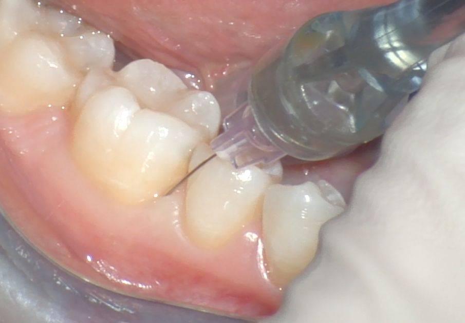 Сколько отходит анестезия зуба?